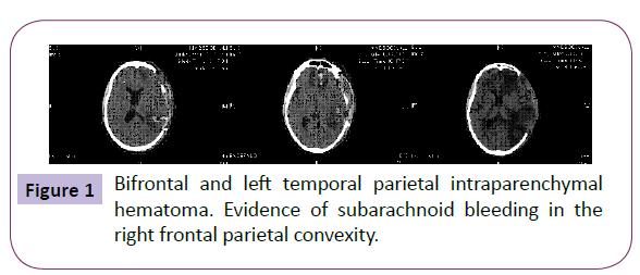 neurology-neuroscience-Bifrontal